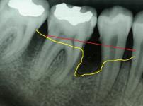 periodontitas-rengeno-foto