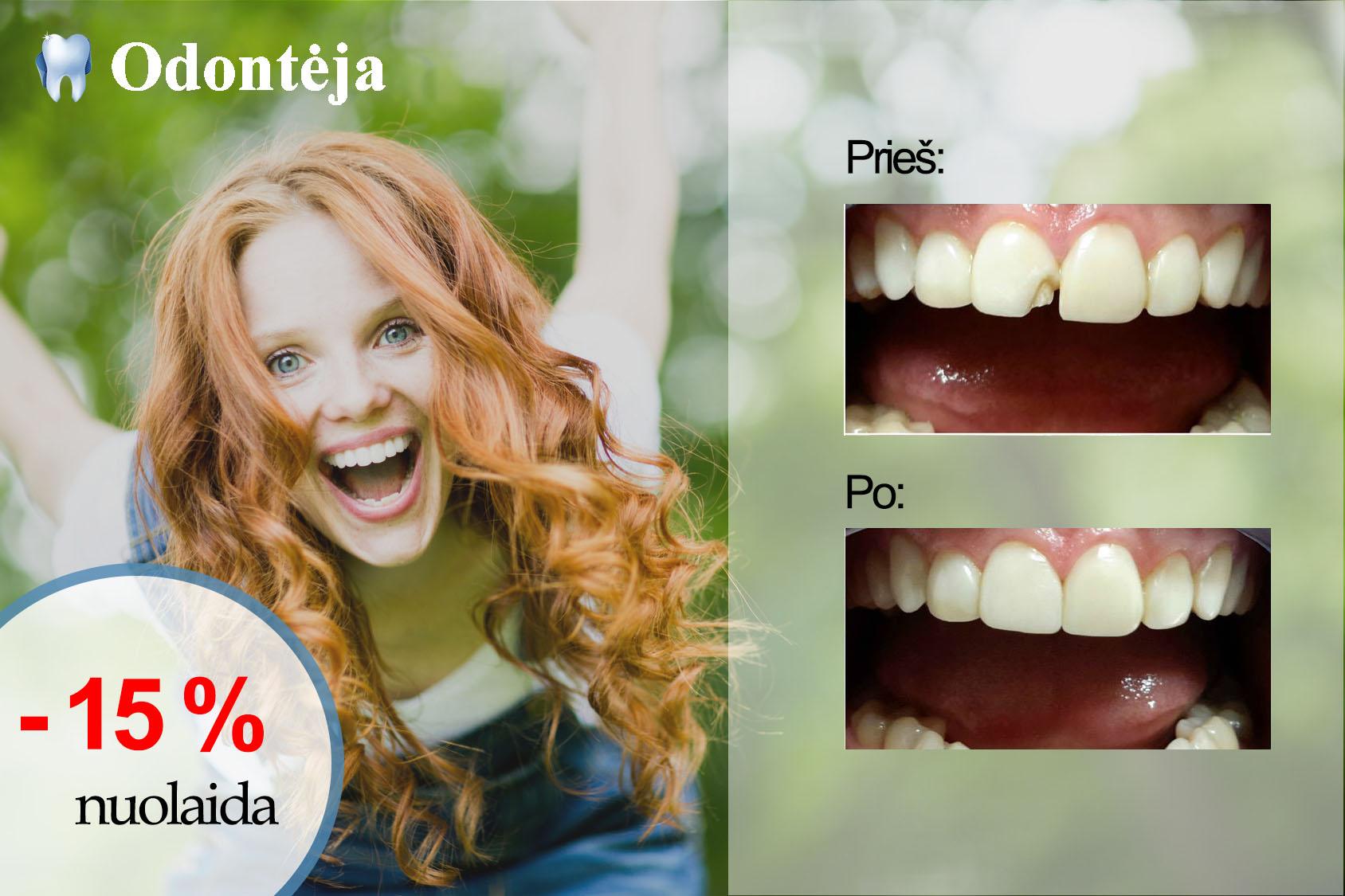 pasiūlymas estetiniam dantų plombavimui