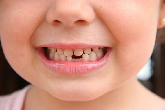 dantukų fėja
