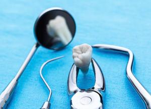 dantų chirurgas