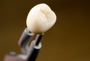 dantu protezavimas vilniuje